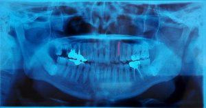 歯科で使用するパノラマレントゲン写真