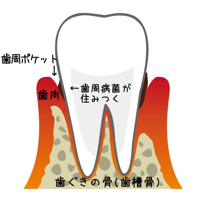 歯周病の説明