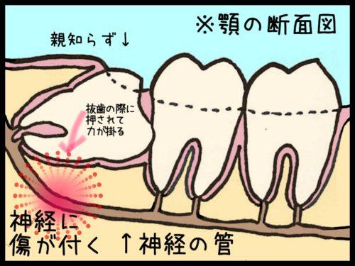 抜歯の時に起こる下顎の神経障害の解説