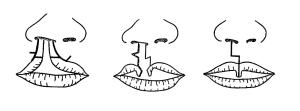 口唇形成術のHagedorn法