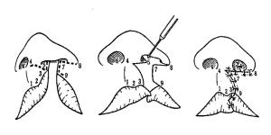口唇形成術のMillard法