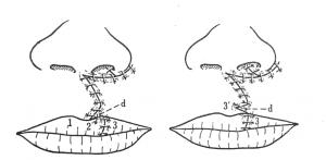口唇形成術のMillard と小三角弁