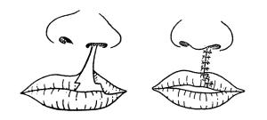 口唇形成術のMirault法
