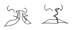 口唇形成術のSkoog法