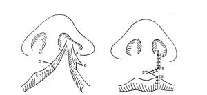 口唇形成術のTennison法