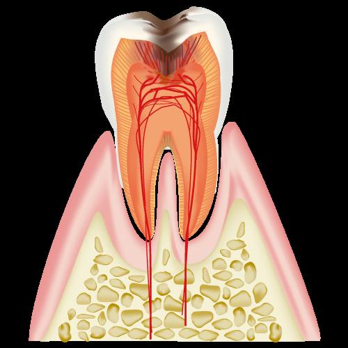 神経まで到達した虫歯