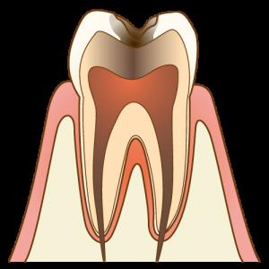 C3虫歯の進行度