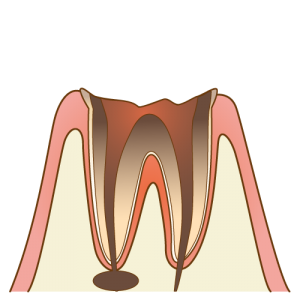 C4虫歯の進行度