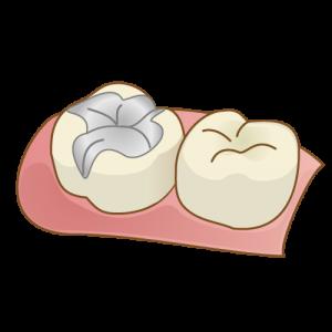 歯科の詰め物_インレー