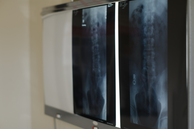 腰の骨のレントゲン写真