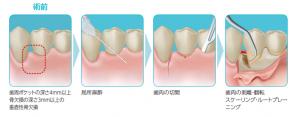 歯周組織再生剤リグロス