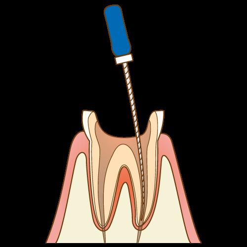 神経の治療中の歯2