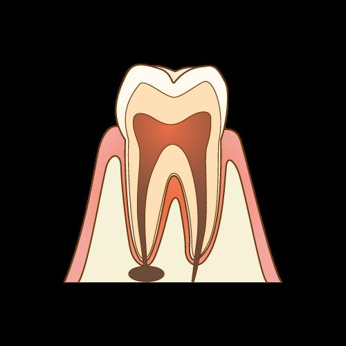 神経の治療が必要な歯