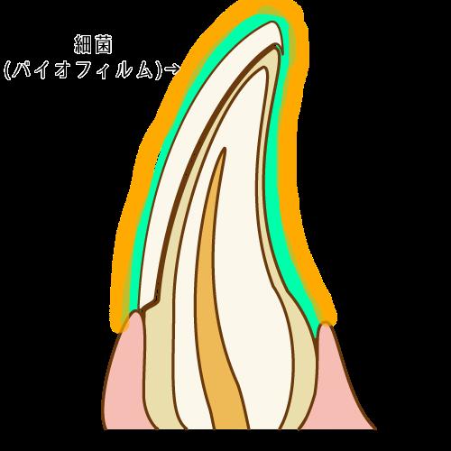 細菌の付着した歯の表面