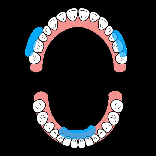 歯石の付きやすい位置