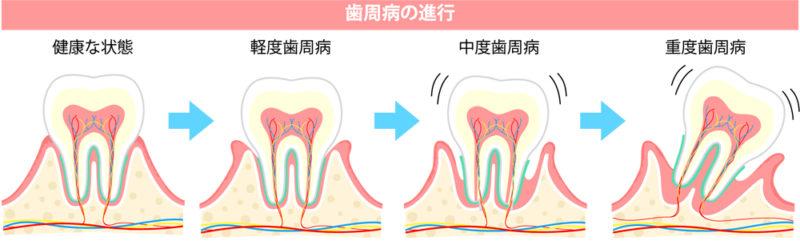歯周病の重症度