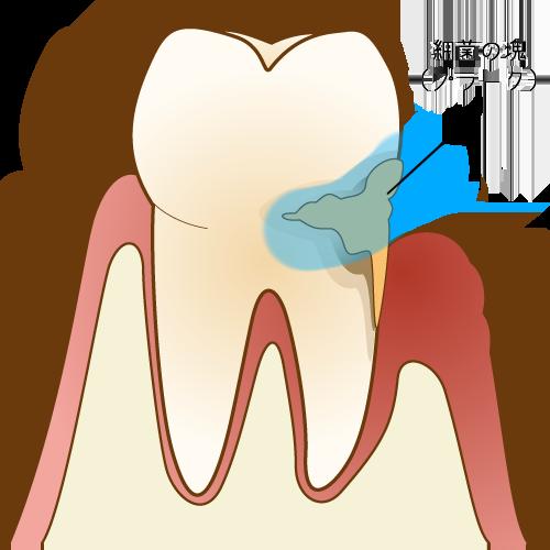 歯に付着する歯周病菌(プラーク)