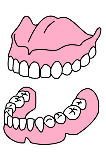 総入れ歯上下2