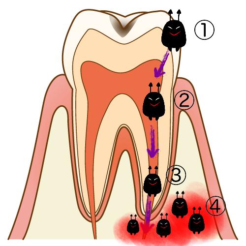 虫歯の進行の説明
