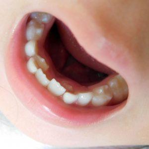 乳歯から永久歯への生え変わり