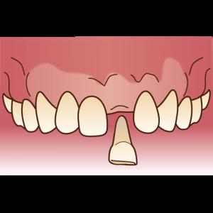 ブリッジをする前の抜けた歯