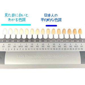 歯の色調を表す色見本