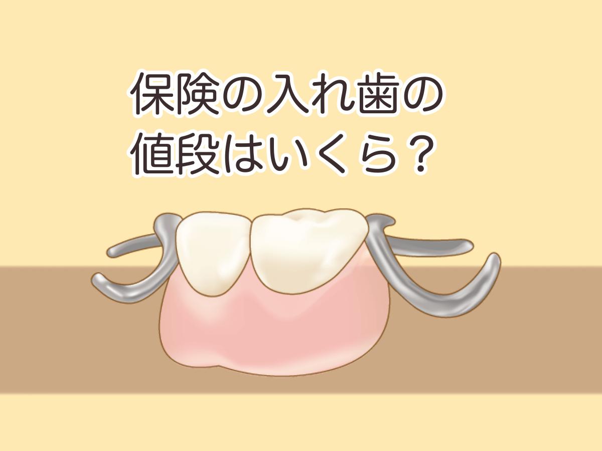 入れ歯の値段についてのイメージ図