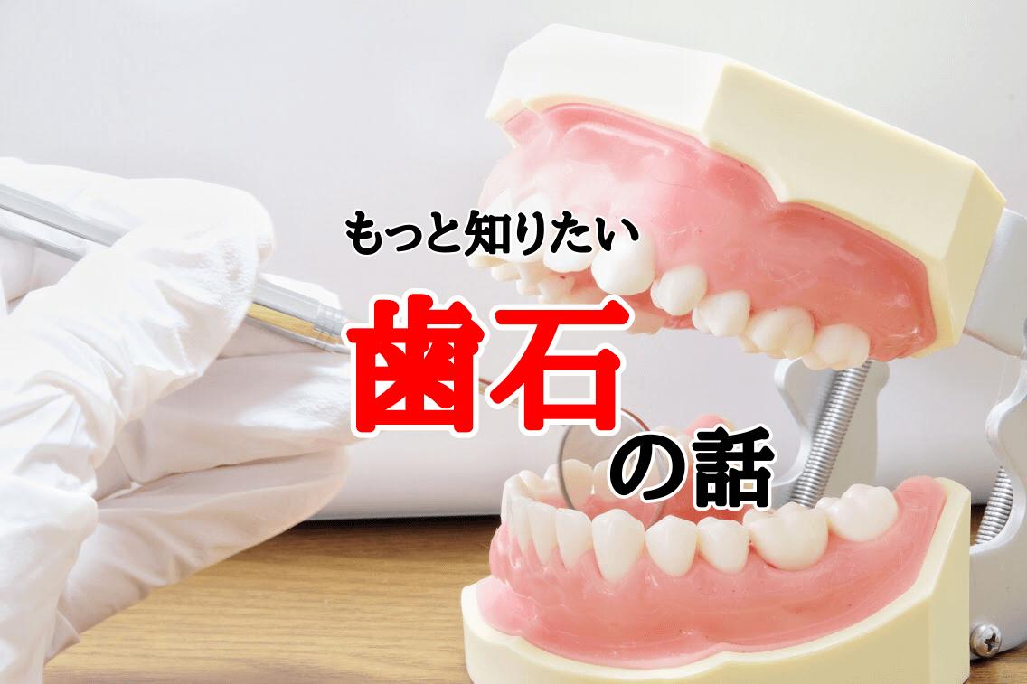 歯石の原因について