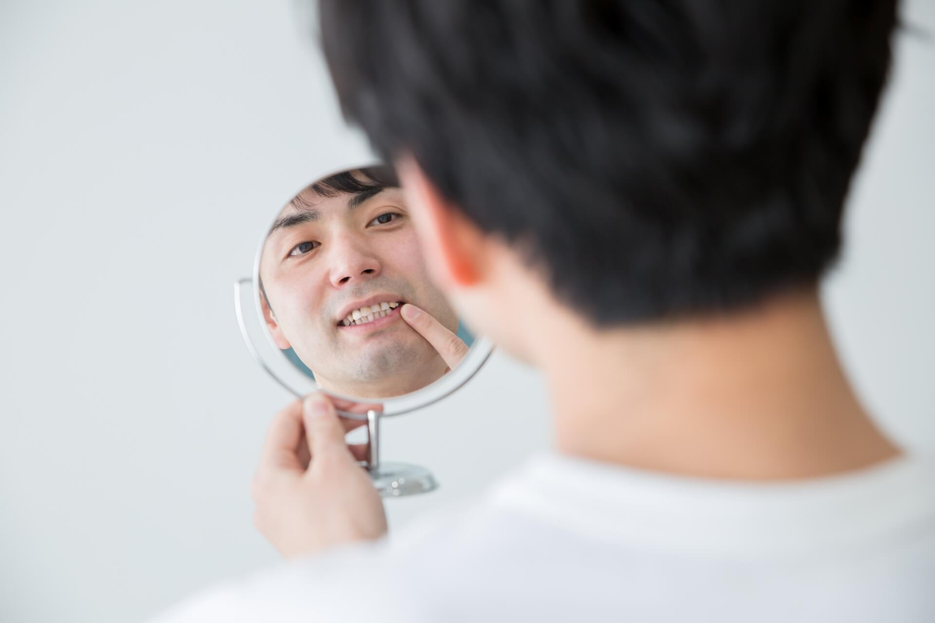 歯のセレック治療に満足している男の人